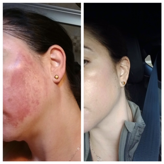 un damage/hyperpigmentation is gone after one Jessner peel treatment. amazing results with Skin and Body Balance