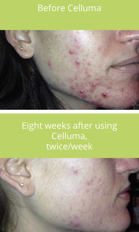 Acne treatment with Celluma with Skin and Body Balance in Atlanta, GA