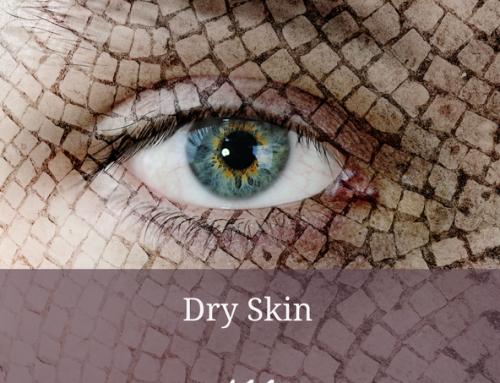 Dry Skin 411